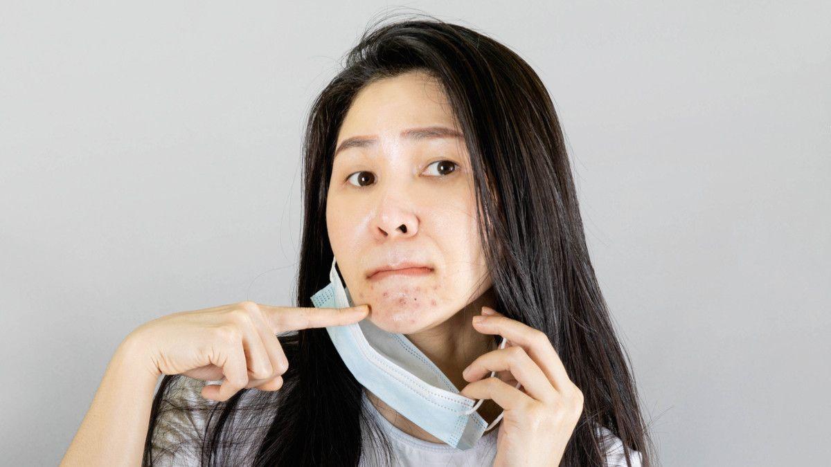 Langkah Mudah Cegah Jerawat Saat Memakai Masker